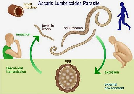 The Straight Poop – Ascaris Lumbricoides